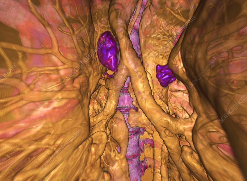 Calcified lung lymph nodes, 3D CT scan