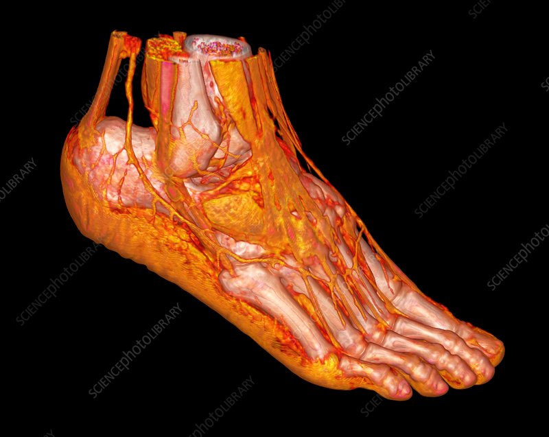 Human ankle and foot, 3D CT scan