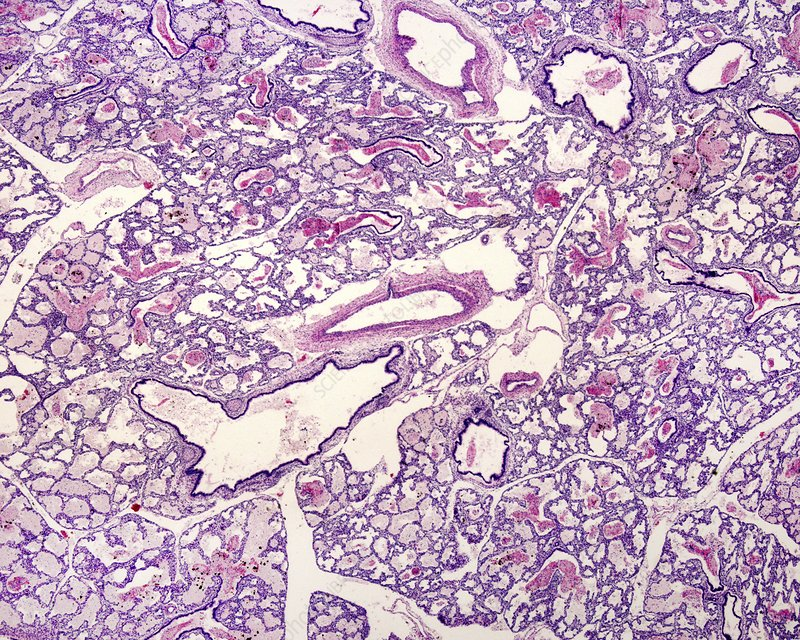 Pulmonary alveoli. Elastic fibres, light micrograph