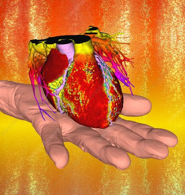 Human heart and hand, 3D CT angiogram