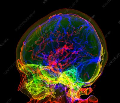 Brain blood vessels, 3D CT angiogram