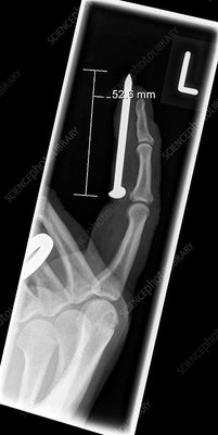 Nail injury to index finger, X-ray