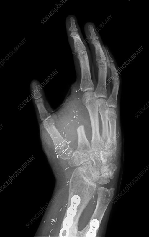 Thumb created from index finger, X-ray