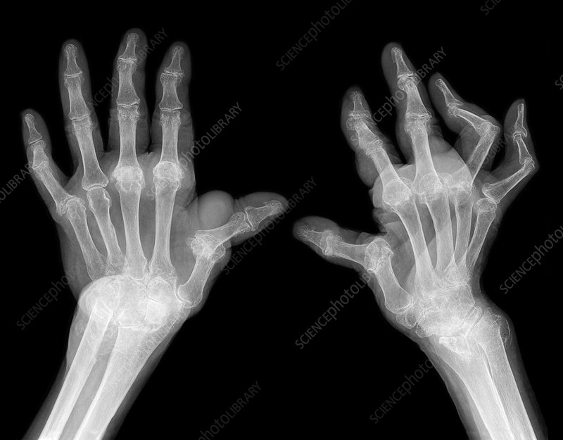 Rheumatoid arthritis of the hands, X-ray