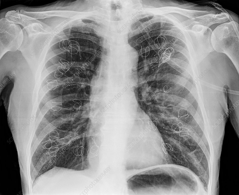 Implanted lung volume reduction coils, X-ray