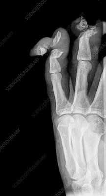 Lawnmower finger injuries, X-ray