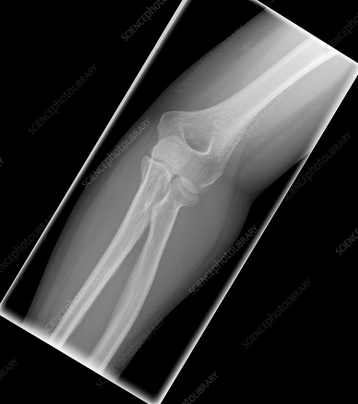 Fracture of elbow bone, X-ray