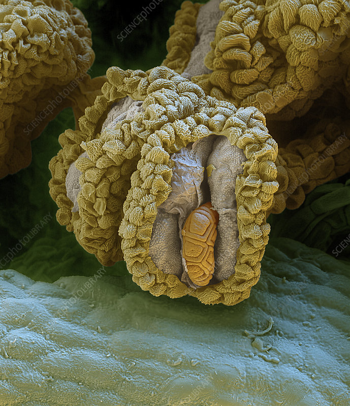 Acacia pollen grains on anthers, SEM
