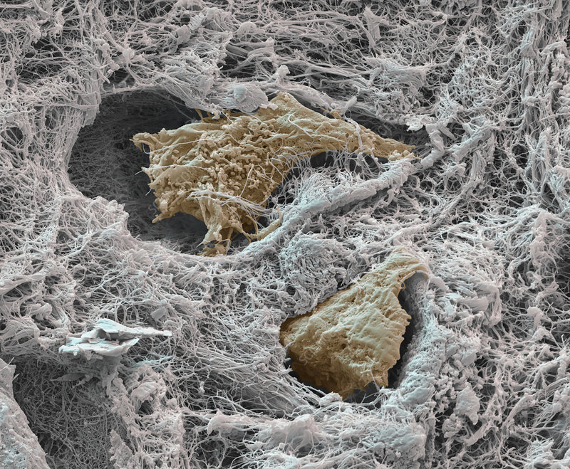 Cartilage cells and bone tissue, SEM