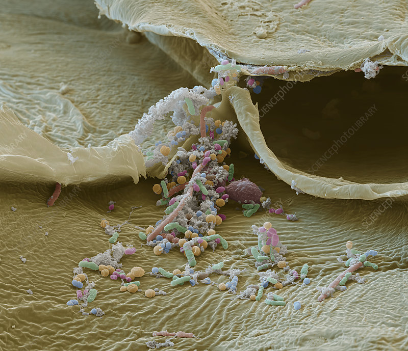Bacteria on fermented cabbage, SEM