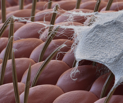 Spider silk on insect prey, SEM