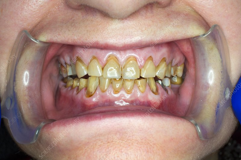 Teeth before dental crown surgery
