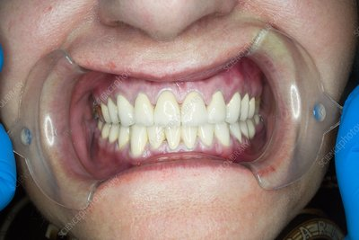 Teeth after dental crown surgery