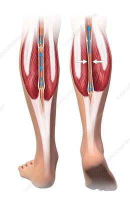 Skeletal-muscle pump for leg veins, illustration