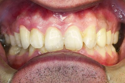 Dental malocclusion correction