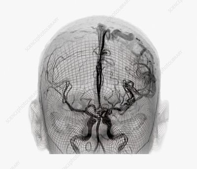 Cerebral arteriovenous malformation, 3D CT scan