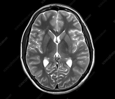 Human brain, axial MRI scan