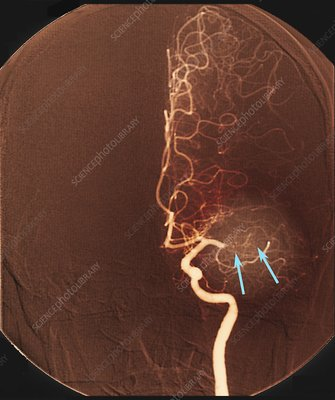 Brain arteries before stroke treatment, angiogram