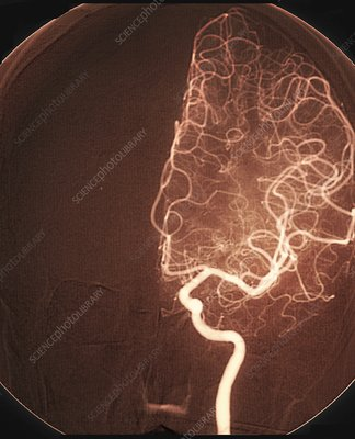 Brain arteries after stroke treatment, angiogram