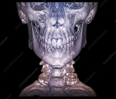 Human skull and cervical spine, 3D CT scan