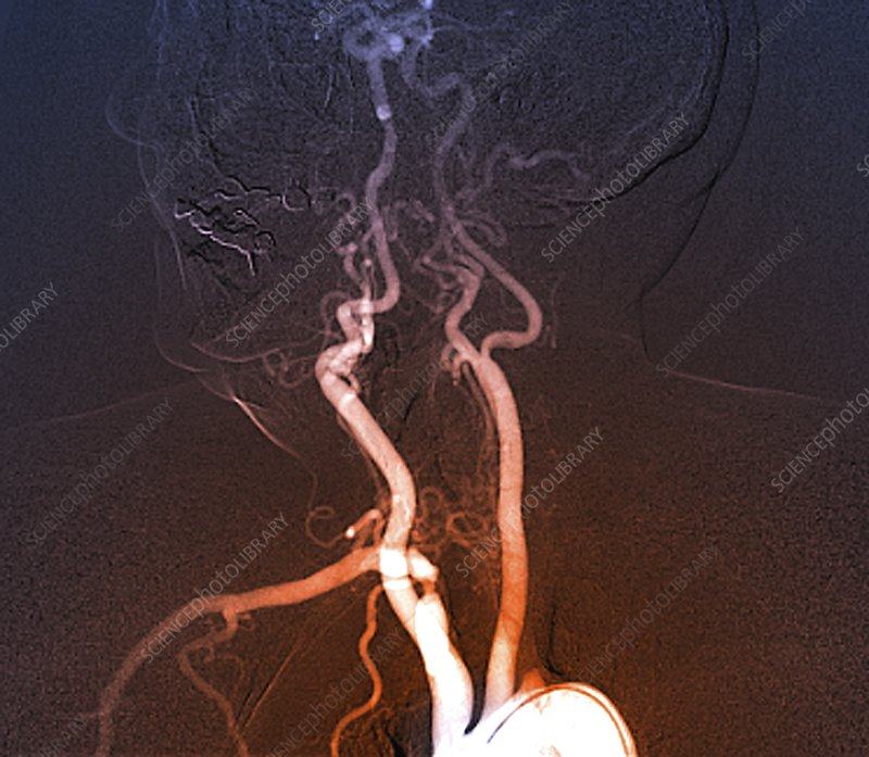 Reduced blood flow in polyvascular disease, angiogram