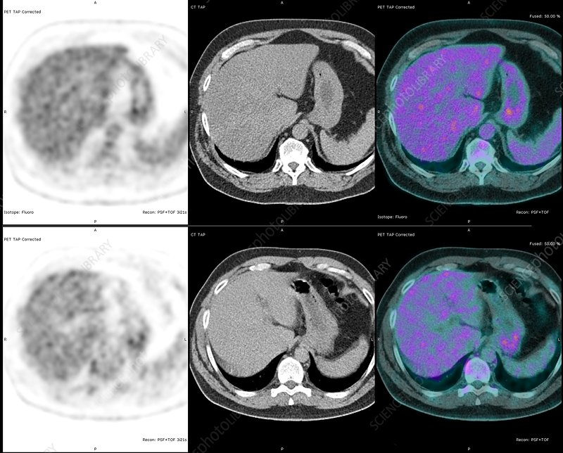 Colon Cancer Scans Pet And Ct Scans Stock Image C038 8771 Science Photo Library