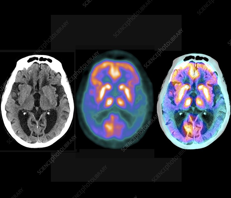 Alzheimer's disease, PET and CT brain scans