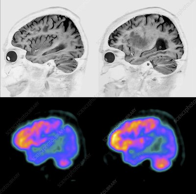 Alzheimer's disease, MRI and PET brain scans