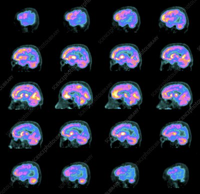 Alzheimer's disease, PET brain scans