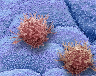 CAR T-cell therapy, SEM