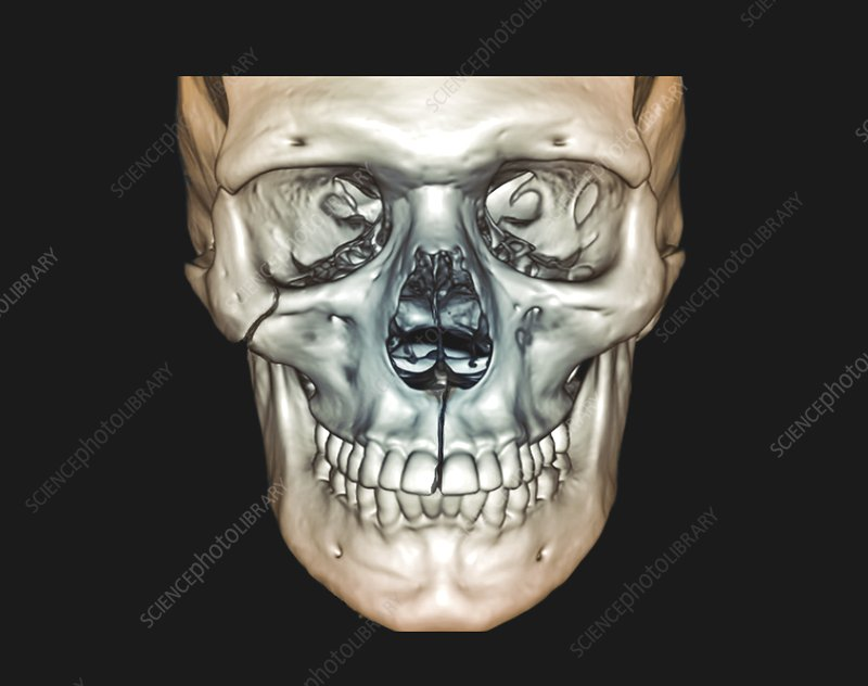 Le Fort skull fractures, 3D CT scan