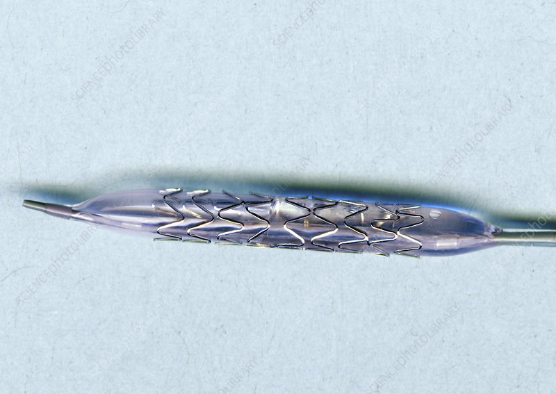 Coronary stent and balloon catheter