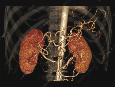 Hypertension and stenosis of renal artery, 3D CT angiogram