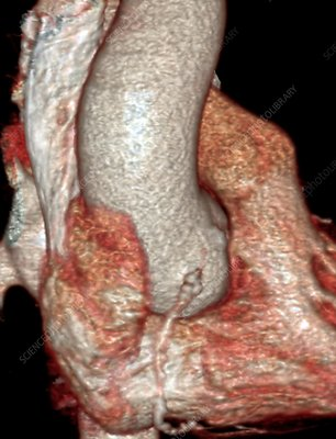 Coronary artery disease, 3D CT angiogram