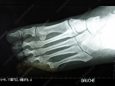 X-ray of the left foot