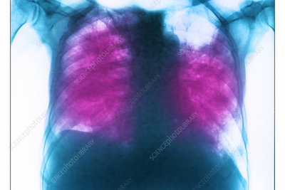 Allergic bronchopulmonary aspergillosis, x-ray