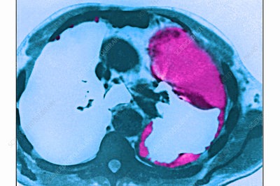 Lung cancer caused by asbestosis, CT scan
