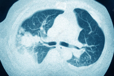 Pleurisy (left lung), chest scan