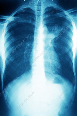 Pulmonary tuberculosis, chest x-ray