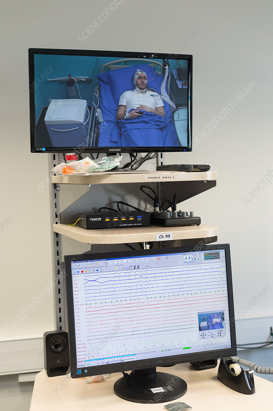 Epileptology unit in Nice Hospital, France