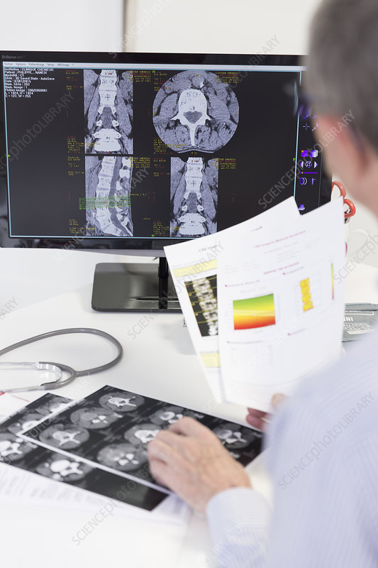 Lumbar scan and bone densitometry