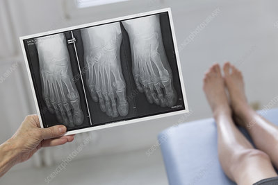 Digital x-ray of the right foot