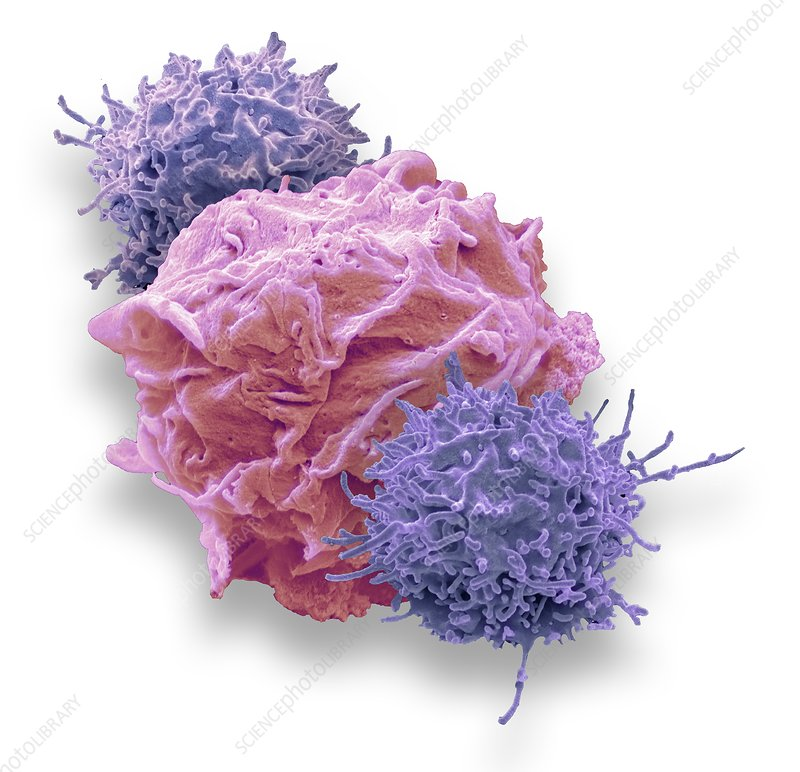 CAR T-cell immunotherapy, SEM