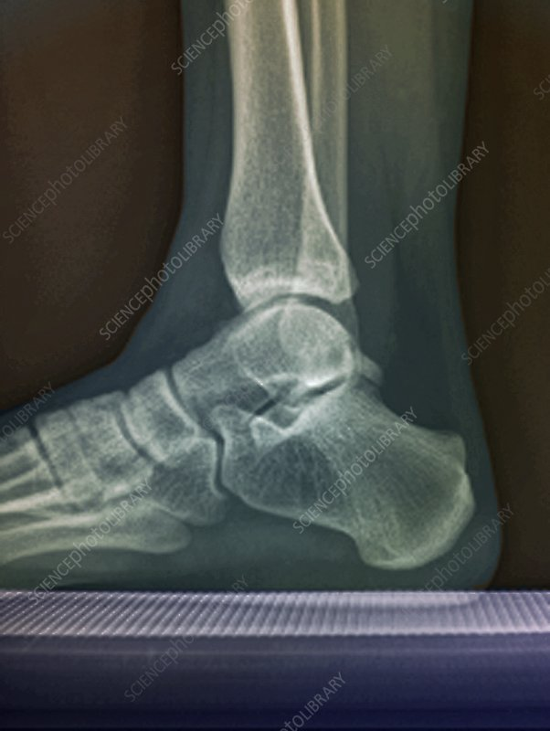 Human foot and ankle, lateral X-ray
