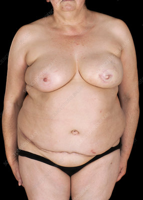 Nipple tattoo after breast reconstruction surgery