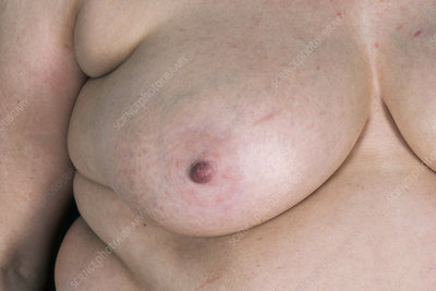 Normal breast after breast reconstruction surgery