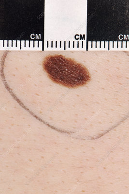 Atypical mole being measured