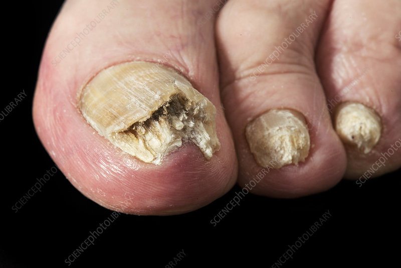 Psoriasis of the toenails - Stock Image - C038/9470 - Science Photo ...