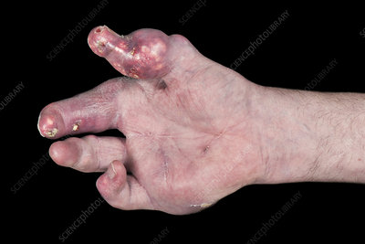 Severe gout affecting the hand