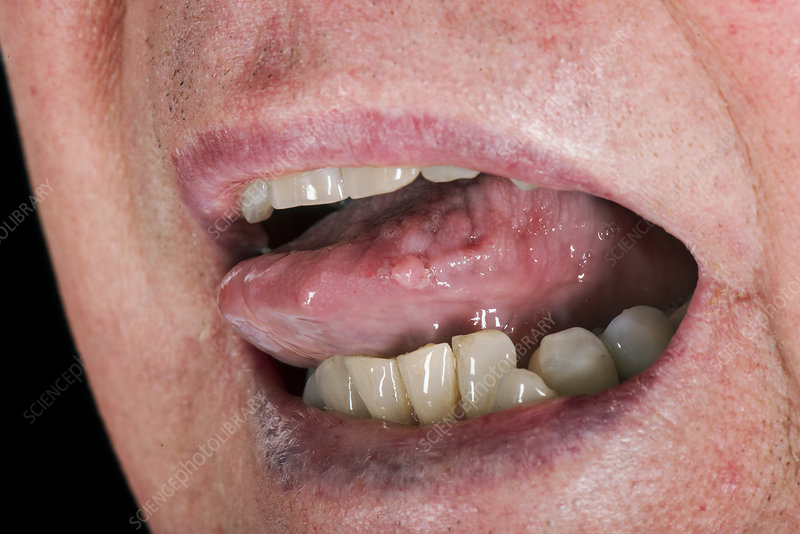 Warts on the tongue, Tongue Fibroma Removed cancere agresive
